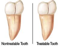 Cracked Teeth - Cracked Tooth