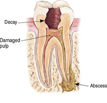 Endodontic Procedure - Step 1