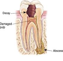 Endodontic Procedure - Step 1