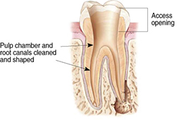 Endodontic Procedure - Step 2