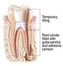 Endodontic Procedure - Step 3