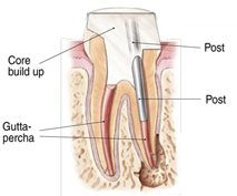 Endodontic Procedure - Step 4b